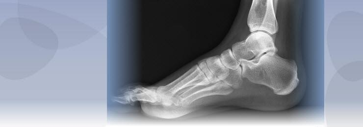 X Ray image of a singular foot showing how the bone structure can be affected